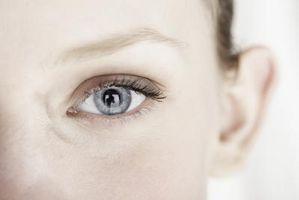 redigera röda ögon